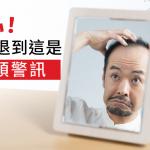 你是高額頭還是前額禿?小心髮線到這是禿頭警訊!